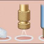 Kriyoterapi Nedir Siğil Dondurma
